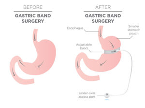 Weight Loss Surgery - Gastric Band